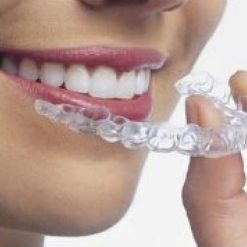 Dental Essix Retainer - Custom Fit