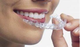 Dental Essix Retainer - Custom Fit