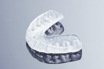 Professional Teeth Grinding Dental Nightguard – Custom Fit