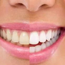 teeth bleaching uk