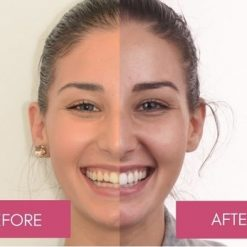 teeth whitening before after uk
