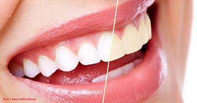 Teeth Whitening Gels Great Smile Overnight with Carbamide Peroxide - Teeth Whitening Gels - Great Smile Overnight with Carbamide Peroxide