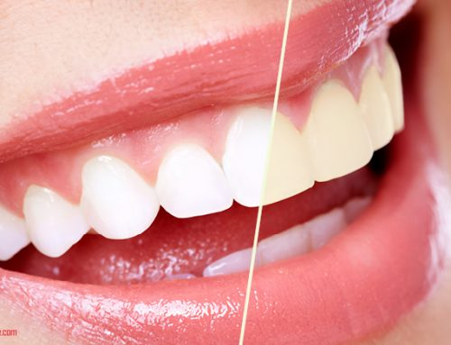 Teeth Whitening Gels – Great Smile Overnight with Carbamide Peroxide