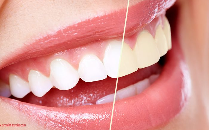Teeth Whitening Gels Great Smile Overnight with Carbamide Peroxide 700x436 - Home