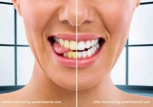 Dicover the Best Products For White Teeth