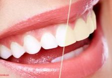 Teeth Whitening Gels - Great Smile Overnight with Carbamide Peroxide